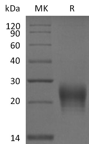 Recombinant Human Fas Ligand (N-6His)