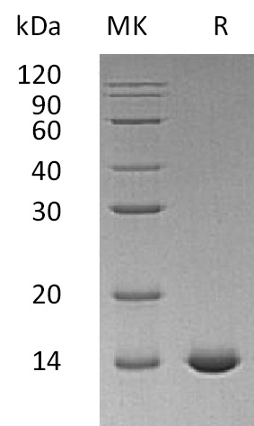 Recombinant Human IL-2 (aldesleukin)