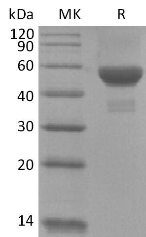 Recombinant Human Carbonic Anhydrase 9 (C-6His)
