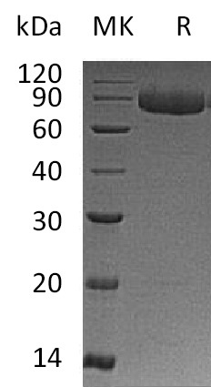 Recombinant Human IL-12RB1 (C-6His)