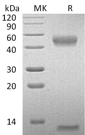 Recombinant Mouse FcRn (C-6His)