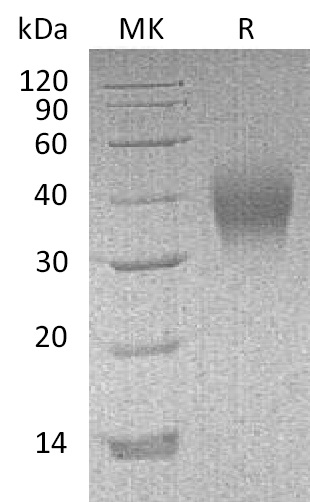 Recombinant Mouse CD16(C-6His)