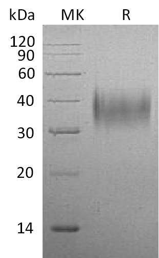 Recombinant Mouse CD16 (C-6His)