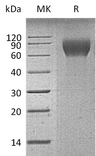 Recombinant Mouse CD6 (C-6His)