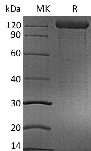 Recombinant Human CD96 (C-mFc)