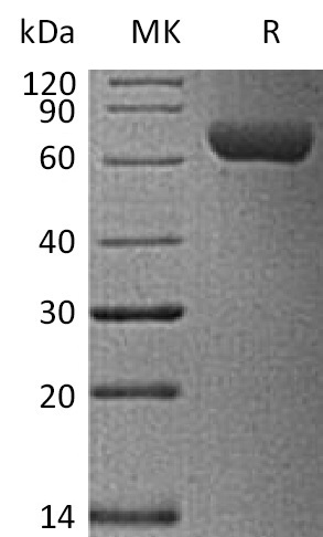 Biotinylated Human ROR1 (C-6His-Avi)
